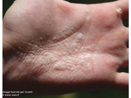 ceci est une main mycosée...yeurk
