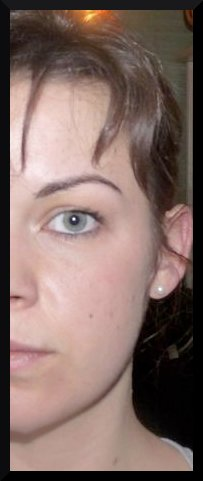 Moitié de tête récurée ( l'autre moitié aussi mais j'avais l'oeil torve )