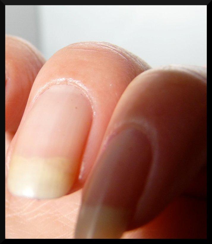 Pas de déshydratation autour des ongles, youpi !