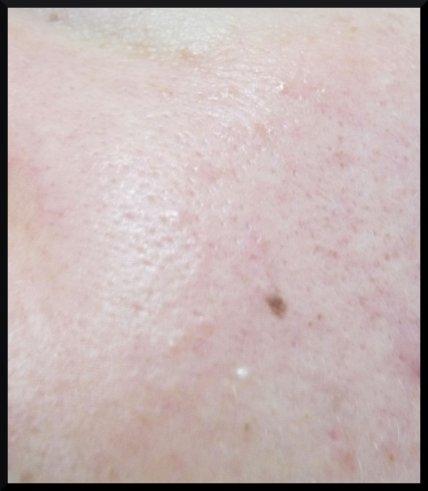 Zoom sur la peau ( avec un charmant grain de milium )