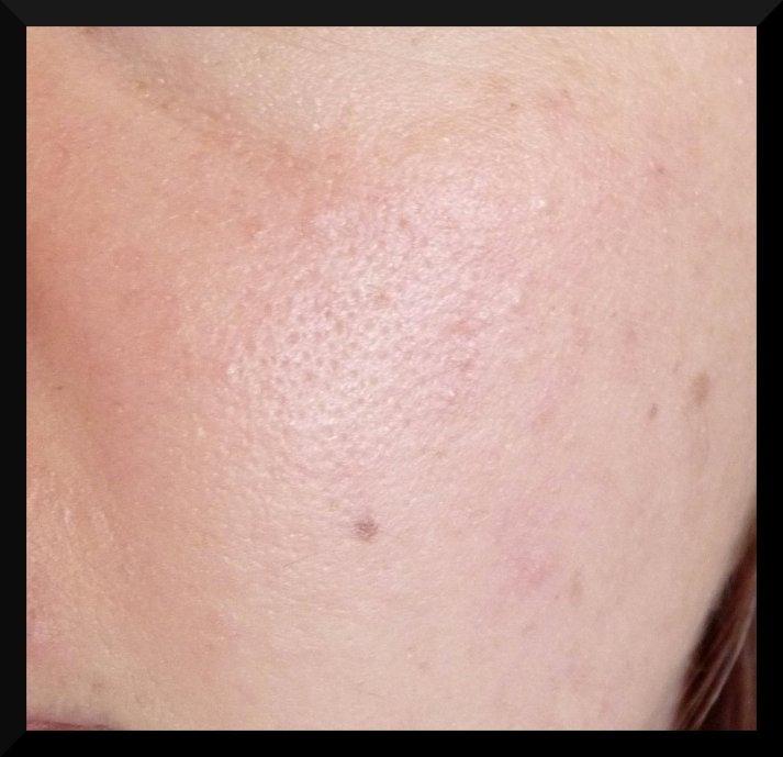 Zoom sur peau unifiée